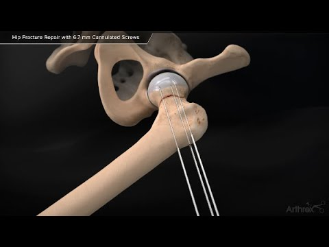 Collum femoris fracture treatment with  Cannulated Screws