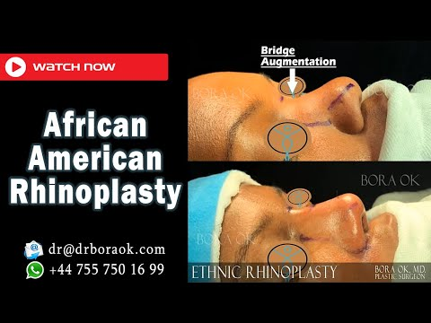 Dr. Bora Ok - African American Rhinoplasty Surgery - Before & After Transformation