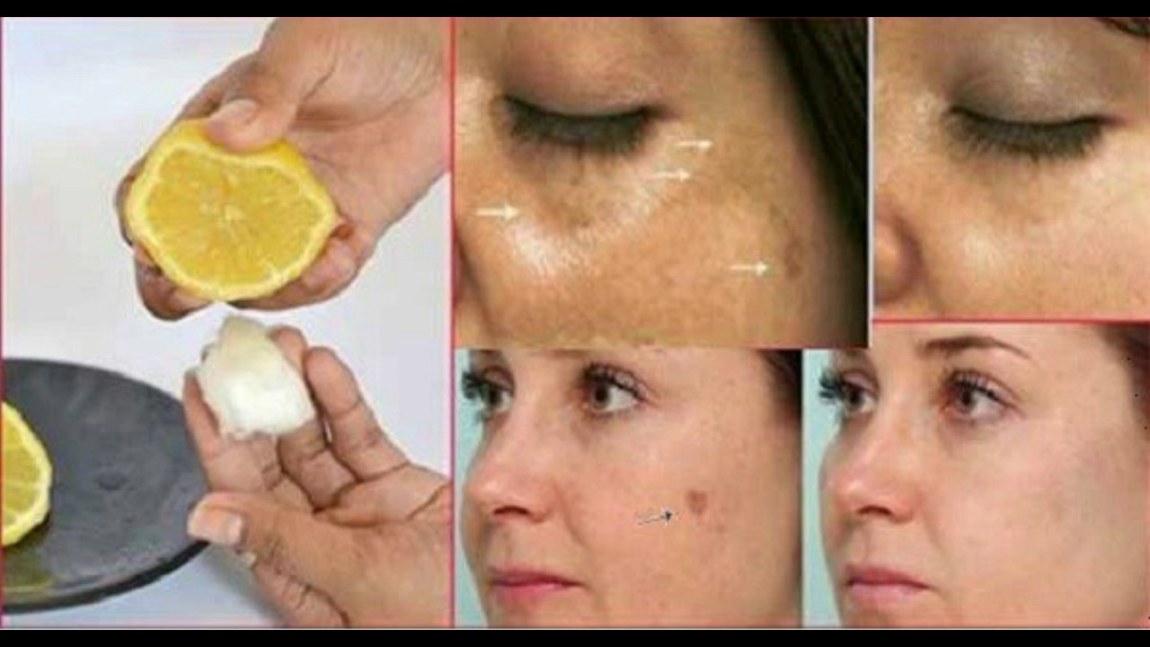 facial dark spot removal