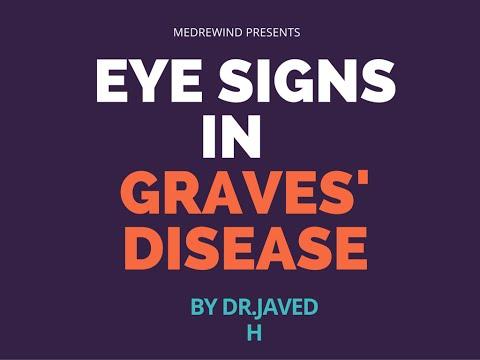 Eye Signs In Grave S Disease Simplified Youtube