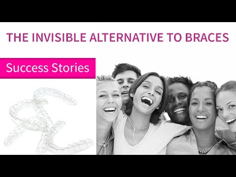 Full Story Video Before and After Teeth Straightening | Eon Aligner