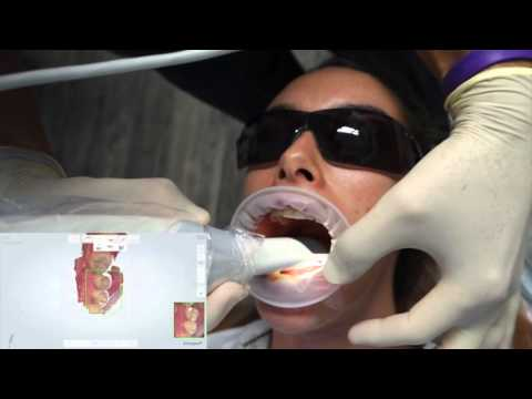 Trios 3 Shape training video - A real dentist's guide to full arch digital scanning.