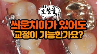 씌운 치아(보철물) 있어도 치아교정 가능한가요?