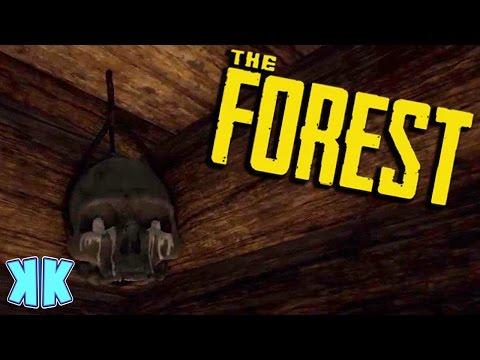 The Forest | BROKEN SKULL LIGHTS!? | Updated 2016 Gameplay | #17