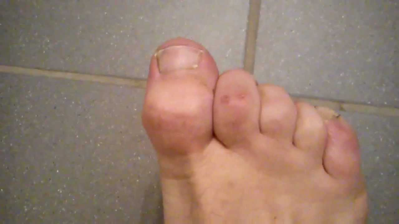 how to fix my hammertoes