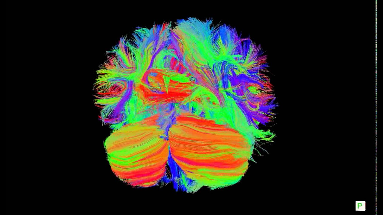 human brain connectivity dti 20 year old female youtube