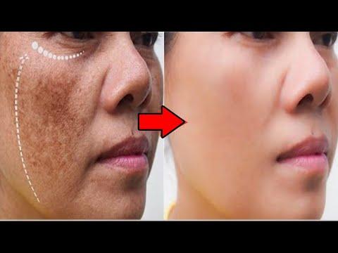 Remove Face Pigmentation Naturally