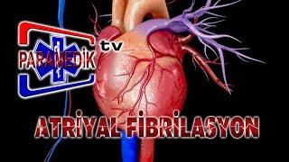 EKG - ATRİYAL ARİTMİLER - Atriyal Fibrilasyon