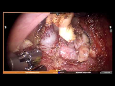 Full Robotic prostate cancer removal with Expert Surgeon Naveen Kella