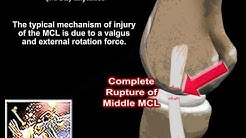 Medial Collateral Ligament Injuries - Everything You Need To Know - Dr. Nabil Ebraheim