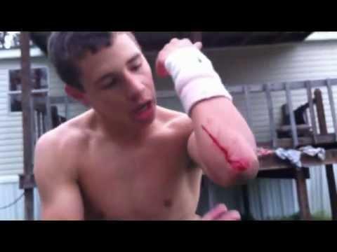 Trampoline Wrestling: KBW- KAGE vs. ??? NO HOLDS BARRED (TITLE)