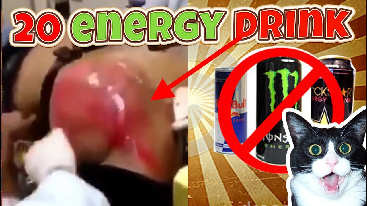 Monster Energy Drink Effects On Body