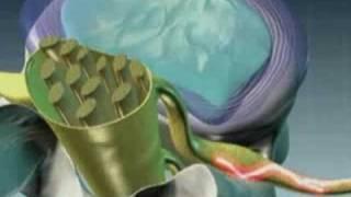 Удаление межпозвонковой грыжи диска на шейном уровне при помощи холодной плазмы (перкутанная нуклеопластика)
