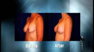 Mastopexy with Implants Thumbnail