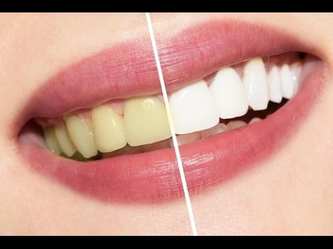 how to make your teeth white naturally