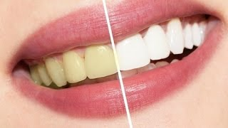How to Have Natural White Teeth in 2 minutes (Works 100%)