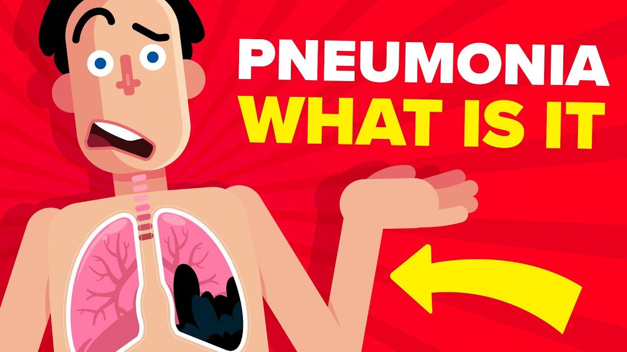 Download Pneumonia - Explained