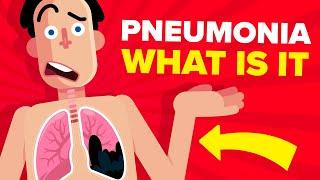 Pneumonia - Explained