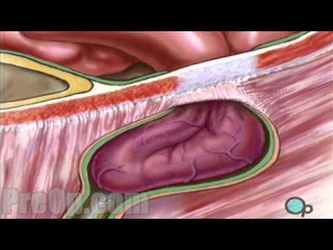 Hernia Repair Inguinal (Open) Surgery Patient Education