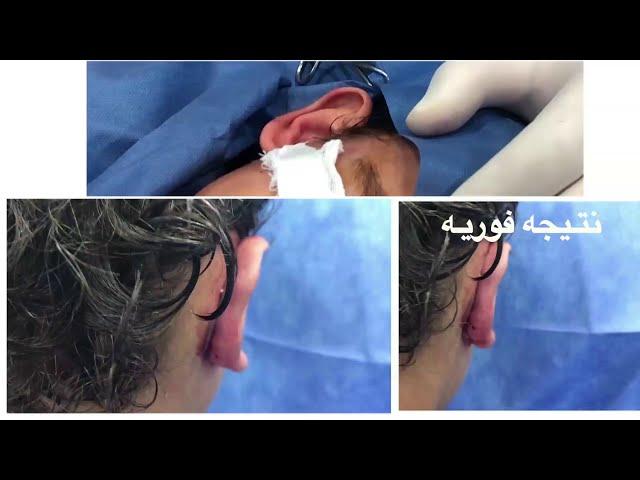 شاهد لايف عملية #تجميل الاذن من داخل #دار الجمال مع د ابراهيم كامل