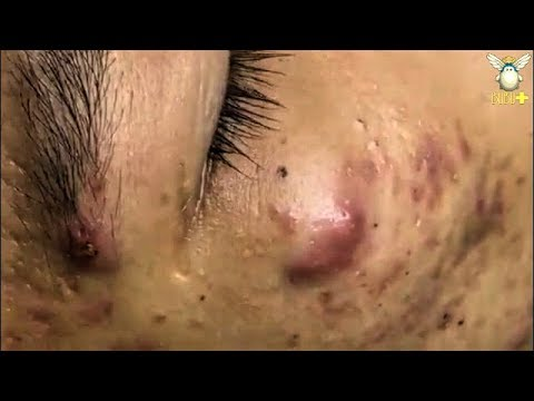 How To Get Rid Of Cystic Acne Blackheads Removal With Oddly Satisfying Relaxing Music 181050 Youtube