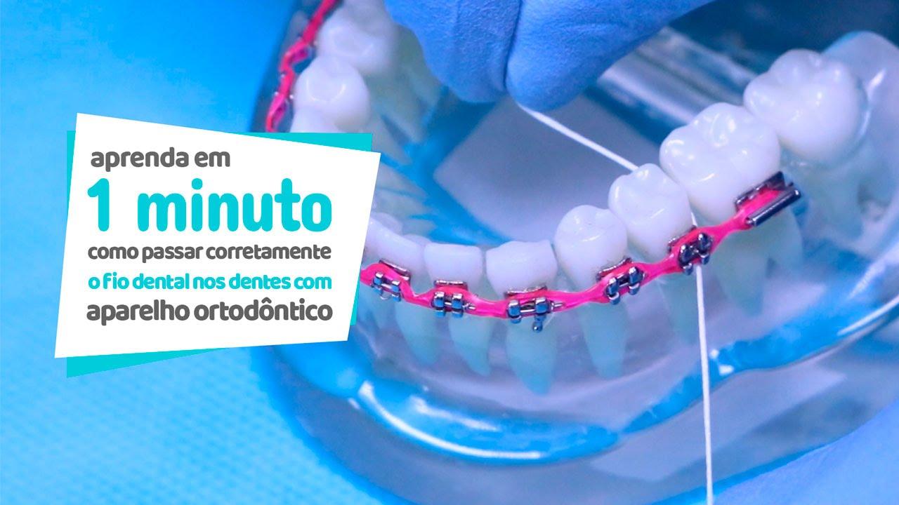 f34ce0f34 Como passar corretamente o fio dental em dentes com aparelho ortodôntico -  Cir Hospital Odontológico - YouTube
