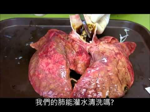 Les effrayants  effets du tabac sur  les poumons Fyntie25