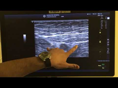 Saphenous Nerve Block In True Adductor Canal Block