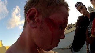 Ultimate Parkour and Freerunning Best Compilation Fails | PK Gaza - إصابات خطيرة جداً