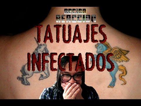 Acciónreacción Tatuajes Infectados Youtube