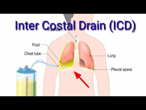 icd,intercostal drain,i c d,icd insertion,chest drain,pleural drain
