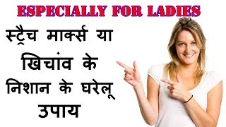 beauty Tips In Hindi For Ladies  Stretch Mark Removal Homemade Gharelu Upay