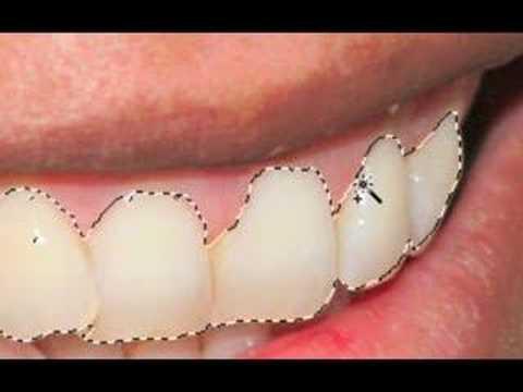 Brighten Teeth In Photoshop! |