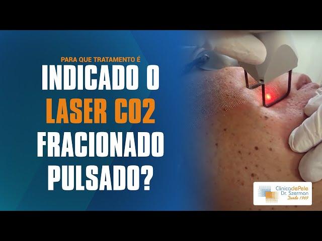 Laser CO2 Fracionado + Pulsado | DEKA Smartxide DOT