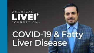 COVID 19 and Fatty Liver Disease