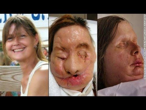 celebridades deformadas por exceso de cirugias -angy tops