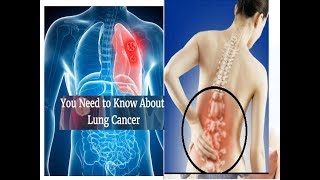 Early Signs and Symptoms of Lung Cancer stages how to identify you have lung disease