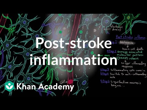 Post stroke inflammation | Circulatory System and Disease | NCLEX-RN | Khan Academy