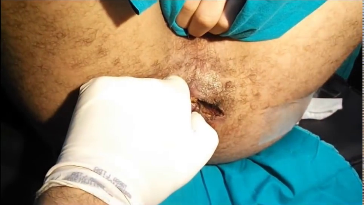 Perianal Fistula The Simplest Cure Hd    -6421