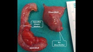 Kapalı Divertikülektomi ve Apendektomi