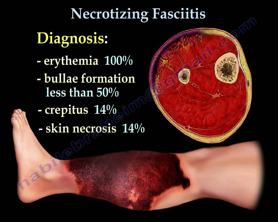 pictures of early necrotizing fasciitis - 900×720