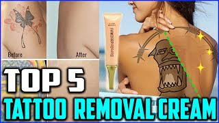 Top 5 Best Tattoo Removal Cream to Buy in 2020