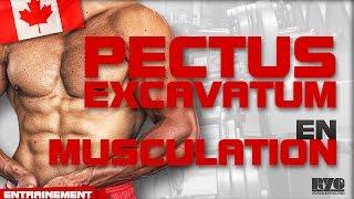 Que FAIRE avec un PECTUS EXCAVATUM en musculation ? - (12/35) thumbnail