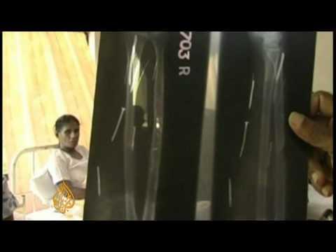 Saudi Arabia employers 'hammer nails' into Sri Lankan maid Mp3