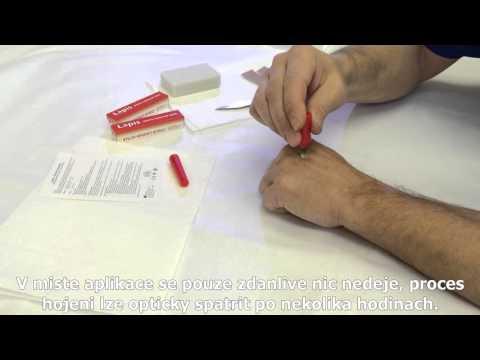 Jak používat tyčinku na bradavice - Lapis Čertův kamínek