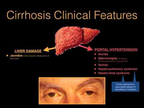 Chronic liver disease & cirrhosis - Dr. MDM