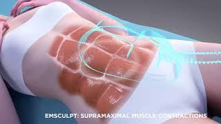 How do the BTL EMSculpt abdomen and buttocks treatments work?