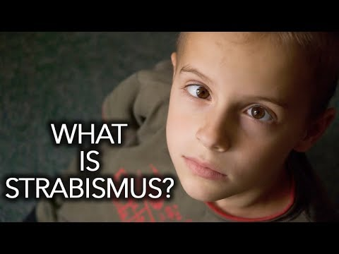 What Is Strabismus? Treatment Options? Strabismus Surgery Or Vision Therapy?