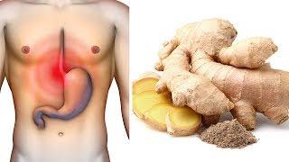 Verabschiede dich von Gastritis und Sodbrennen mit diesen einfachen Hausmitteln!