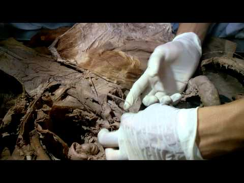 Giải phẫu ngực bụng